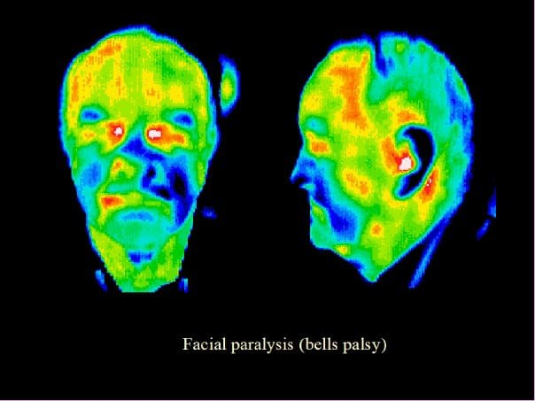Bells Palsy, thermography