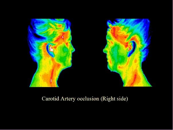 carotid artery, occlusion, blockage, thermography