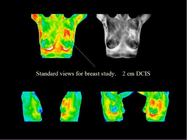 breast cancer, DCIS, thermography