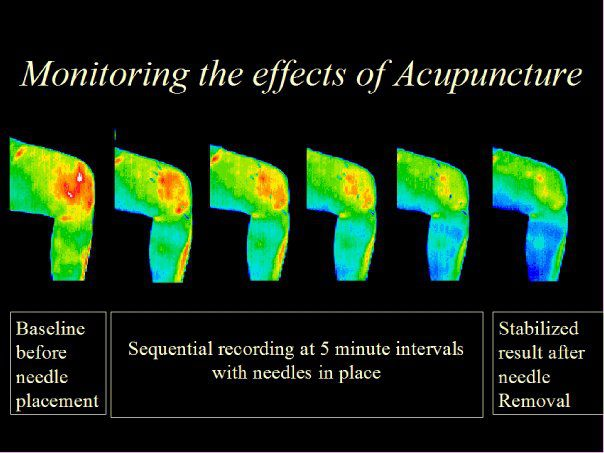 acupuncture, benefits, thermography
