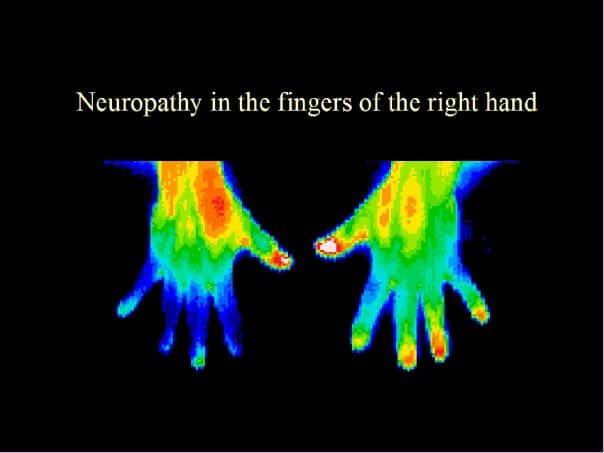 neuropathy, right hand, thermography, imaging