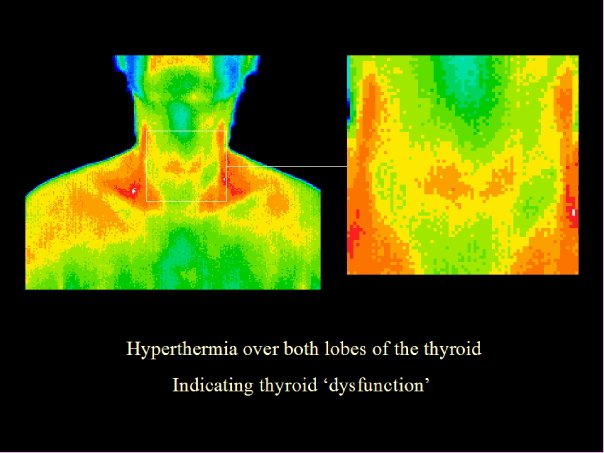 Thyroid dysfunction, thermography